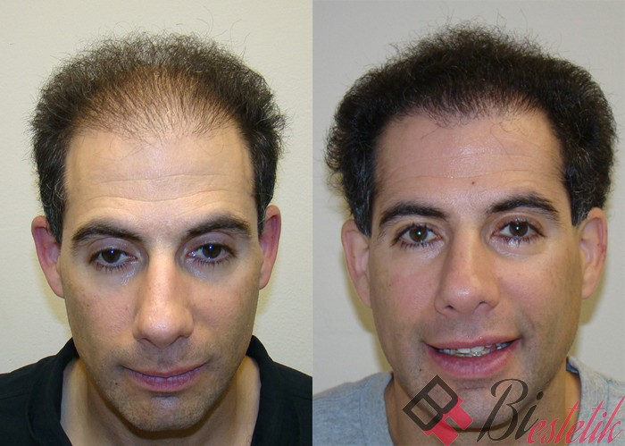 Hair Transplant  Permanent Hair Restoration  RichFeel